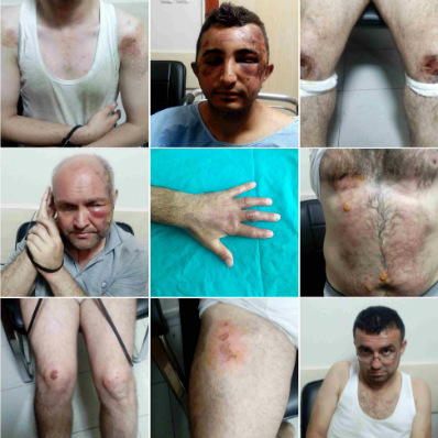 [Graphic] Torture in Turkey: New evidences