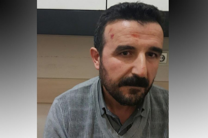 Human rights lawyer beaten by police while under detention