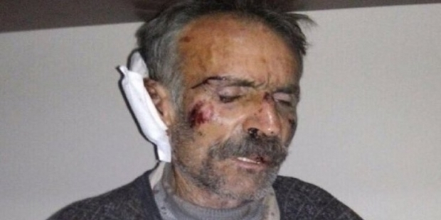 Interior minister defends torture in prison, says Kurdish man was linked to terrorist activities