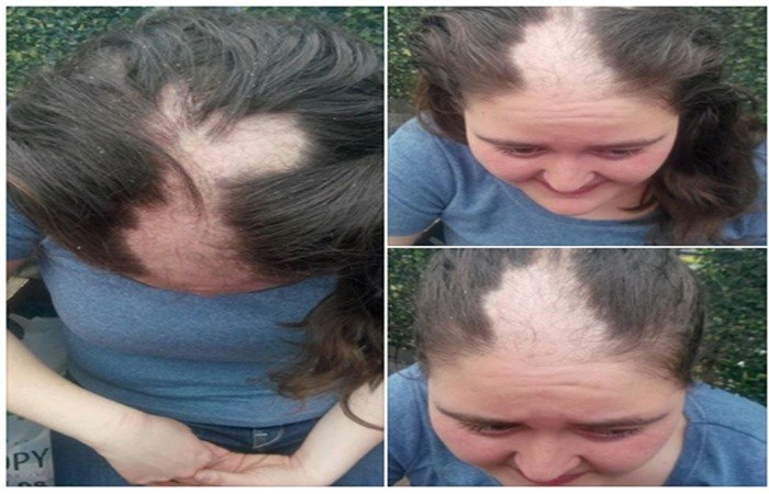 Newly-released woman says police tore out her hair during detention