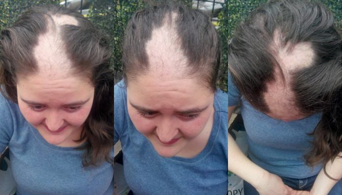 Woman whose hair ripped out by Turkish police jailed in İstanbul