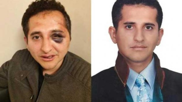 Turkish lawyer beaten by President Erdoğan's bodyguards in İstanbul: report