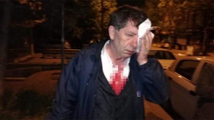 Gov't-critical journalist Selim Demirağ assaulted in front of his house in Ankara